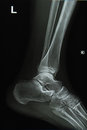 Ankle and foot x-rays image Stock Image