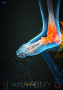 Ankle pain by x- ray on background