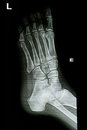 Ankle x-rays image Royalty Free Stock Image