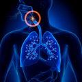 Apnea obstruction sleep apnea anatomy Stock Photo