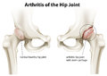 Arthritis of the hip joint illustration showing on a white background Royalty Free Stock Photography