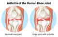 Arthritis of the human knee joint illustration an on a white background Stock Image