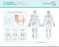 Arthritis and joint pain infographic Royalty Free Stock Photo