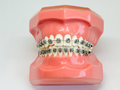 Artificial model of human jaw with wire colorful braces attached Royalty Free Stock Photo