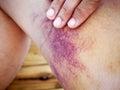 Asian man bruised skin leg Stock Images