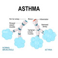 Asthma. alveoli and bronchiole. Royalty Free Stock Photo