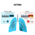 Asthma. Humans lungs and bronchi Royalty Free Stock Photo