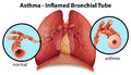 An Asthma-inflamed Bronchial T...