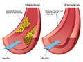 Atherosclerosis arteriosclerosis medical illustration of the differences between and Royalty Free Stock Images