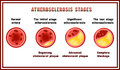 Atherosclerosis stages. Cholesterol plaques. Royalty Free Stock Photo