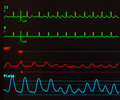 Atrial Flutter with Variable Conduction Royalty Free Stock Photo