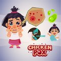 Baby girl with chicken pox rash. infographic set -  illust Royalty Free Stock Photo