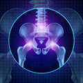 Back joint pain and human backache with skeleton showing the hip spine and vertebral column in glowing highlight as a medical Royalty Free Stock Image