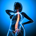 Back pain of female body Royalty Free Stock Photo
