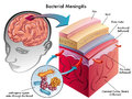 Bacterial meningitis medical illustration of symptoms of Royalty Free Stock Images