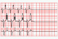 Bad habits concept electrocardiogram showing dragging drinking alcohol smoking activity flattened end Stock Image