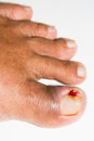 Bad ingrown toenail toenails are primarily affecting the great caused by sideways growth of the nail edge into the skin of the toe Stock Photography