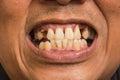 Bad teeth Royalty Free Stock Photo