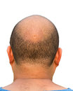 Bald head isolation Royalty Free Stock Photo