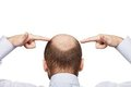 Bald man head Royalty Free Stock Photo