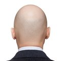 Bald man head Stock Image