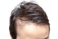 Bald man or woman worry about his or her less hairline Royalty Free Stock Photo