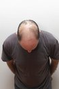 Baldness top view of hair loss problem at middle age man Stock Image