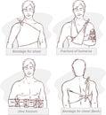 Bandage for chest fracture of humerus ulna fracture bandage for chest black an white a vector image illustration Stock Image