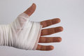 Bandaged hand a after accident or injury Royalty Free Stock Images