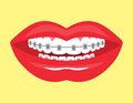 Beautiful smile with aesthetic braces vector illustration of the Royalty Free Stock Photography
