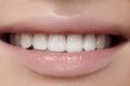 Beautiful smile with whitening teeth. Dental photo. Macro closeup of perfect female mouth, lipscare rutine