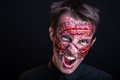 Bleeding face