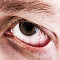 Blood capillary human eye Stock Photography