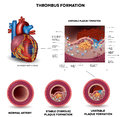 Blood clot formation coronary artery disease anatomy of healthy artery unhealthy arteries human heart muscle damage and detailed Stock Photography