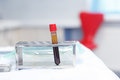 Blood plasma in test tubes for plasmalifting Royalty Free Stock Photo