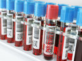 Blood sample positive and many others blood test tubes in a rack