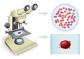 Blood under a microscope analysis of on white background two views Royalty Free Stock Photography