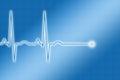 Blue ECG Trace