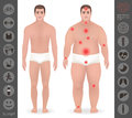 Body of a man, thick and thin , pain points, detailed vector ico
