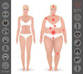 Body of a woman, thick and thin , pain points, detailed vector i