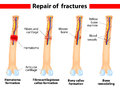 Bone fracture healing process Royalty Free Stock Photos