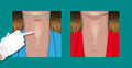 Botulinum neck before and after injecting treatment on Stock Images