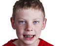 Boy with braces Royalty Free Stock Photos