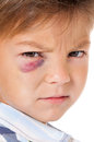 Boy with bruise portrait of real eye isolated on white background Stock Images