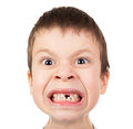 Boy face closeup with a lost tooth Royalty Free Stock Photo