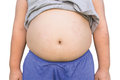 Boy fat and Unhealthy Royalty Free Stock Photo