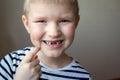 Boy missing milk teeth Royalty Free Stock Photo
