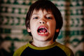 Boy with uneven teeth closeup of mouth open showing missing and Royalty Free Stock Photos