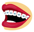 Braces illustration smiling woman mouth with blue and white teeth Royalty Free Stock Image