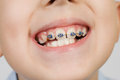 Braces jung boy wearing on his front teeth Royalty Free Stock Photos